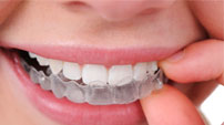 Annandale Invisalign