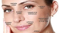Annandale Anti Wrinkle Treatment