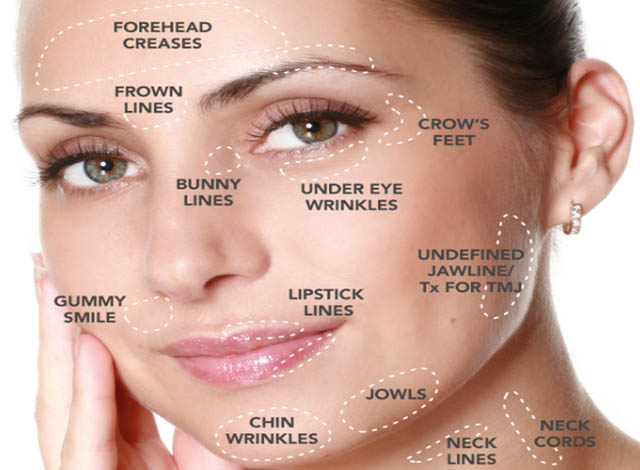 anti-wrinkle-treatments